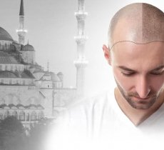 Turkey: The Mecca of Hair Transplants in Europe